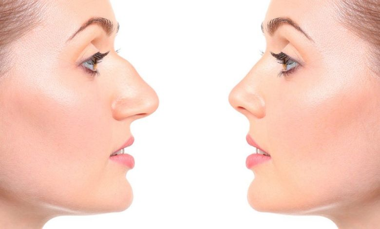 Photo of Important Aspects to Consider When Looking to Have Rhinoplasty Surgery