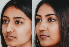 Photo of DIFFERENT WAYS TO ENHANCE YOUR NOSE