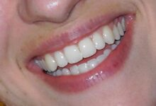 Photo of Restore Your Bright Beautiful Smile With Porcelain Veneers