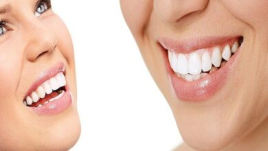 Photo of Cosmetic dentistry: Improve your smile