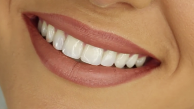Photo of Importance of veneers for oral health