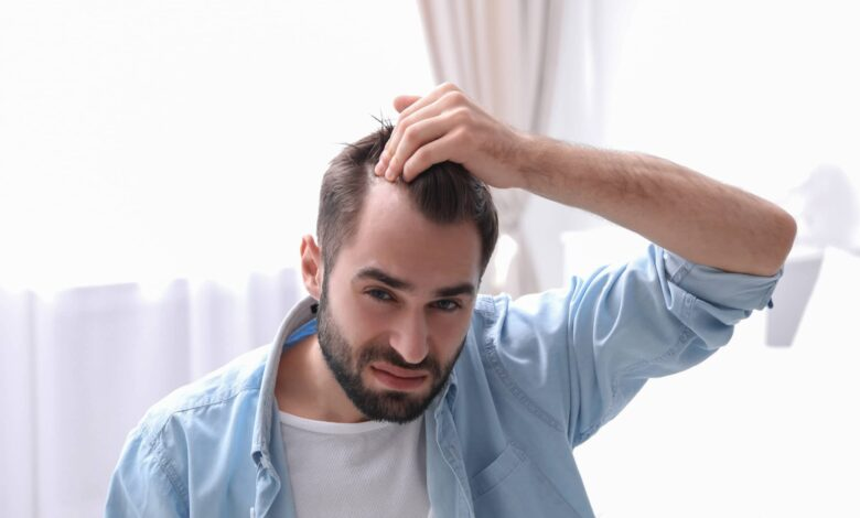 Photo of Enjoy Full, Thick Hair of Your Dreams with Hair Transplant Specialist in Florida