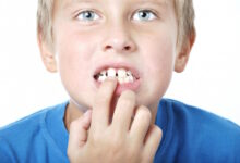 Photo of Tooth Replacement Options to Alleviate the Discomfort That Comes With Dental Gaps