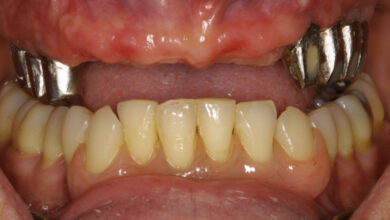Photo of What Is the Role of Dental Implants?