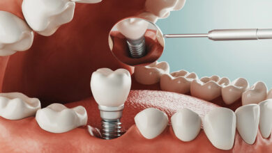 Photo of Five Reasons You Should Consider Dental Implants