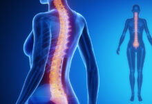 Photo of What you ought to know about spinal conditions
