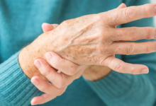 Photo of Providing Exceptional Carpal Tunnel Syndrome Care in New Jersey