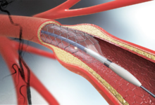 Photo of Why You Should Undergo Carotid Stenting